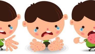 Bệnh tay chân miệng ở trẻ em: Những điều cần biết